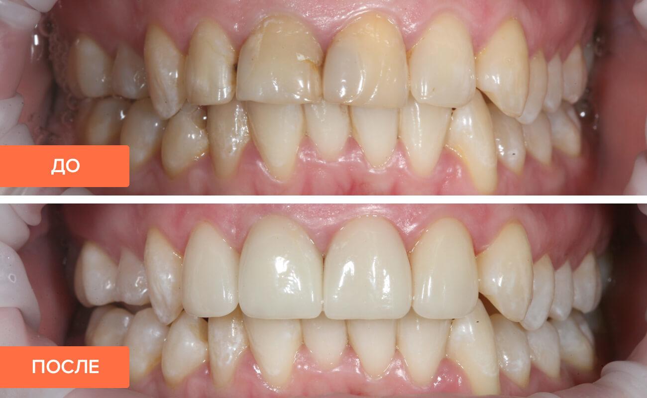 циркониевые коронки на передние зубы - фото